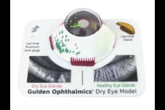 Dry Eye Model